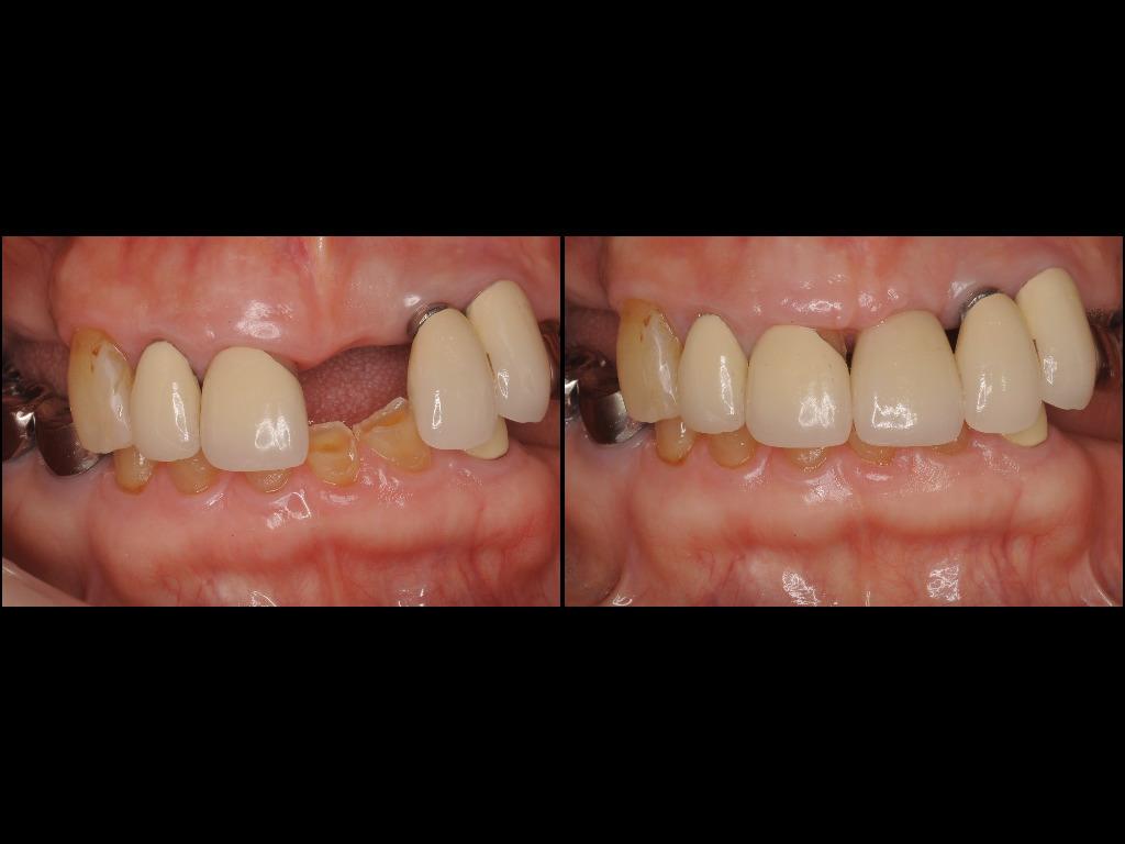 インプラント症例3:森歯科医院@山形