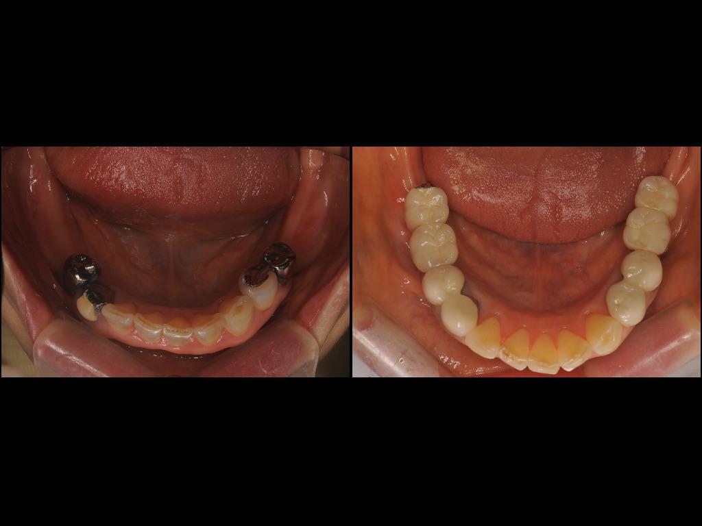 インプラント症例4:森歯科医院@山形