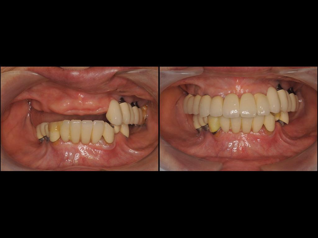 インプラント症例6:森歯科医院@山形