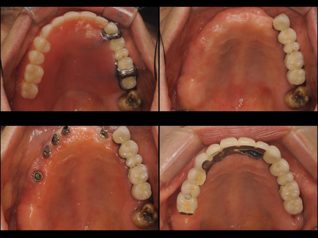 インプラント症例7:森歯科医院@山形