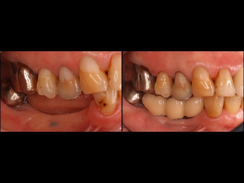 インプラント症例10:森歯科医院@山形